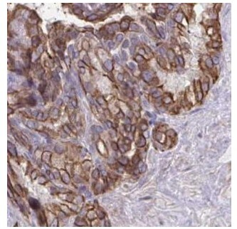 Immunohistochemistry (Formalin/PFA-fixed paraffin-embedded sections) - Anti-ANKRD30B antibody (ab188532)