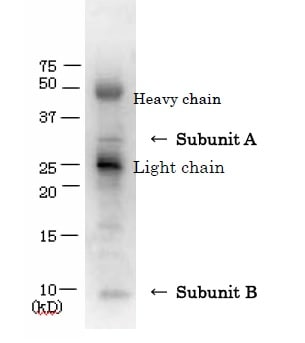 Immunoprecipitation - Anti-VT/Stx antibody (ab188542)