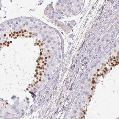 Immunohistochemistry (Formalin/PFA-fixed paraffin-embedded sections) - Anti-C4orf50 antibody - C-terminal (ab188561)