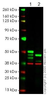 Western blot - Anti-IKK gamma/NEMO antibody [EPR14660] (ab188569)