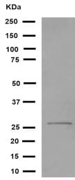 Western blot - Anti-Collagen II antibody [EPR12268] (ab188570)