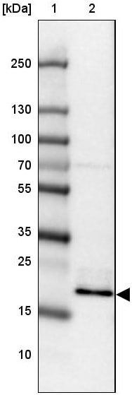 Western blot - Anti-NOLA1 antibody (ab188617)