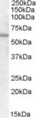 Western blot - Anti-Frizzled 7 antibody - C-terminal (ab188633)