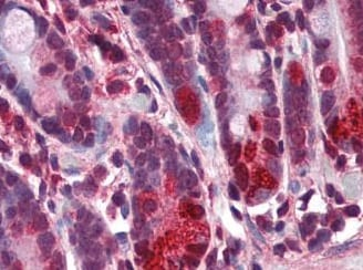 Immunohistochemistry (Formalin/PFA-fixed paraffin-embedded sections) - Anti-CARD15/NOD2 antibody (ab188646)