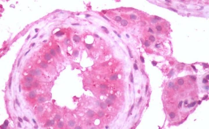 Immunohistochemistry (Formalin/PFA-fixed paraffin-embedded sections) - Anti-Metabotropic Glutamate Receptor 3/MGLUR3 antibody - N-terminal (ab188750)