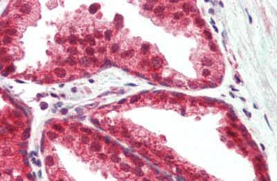 Immunohistochemistry (Formalin/PFA-fixed paraffin-embedded sections) - Anti-TSLP antibody (ab188766)