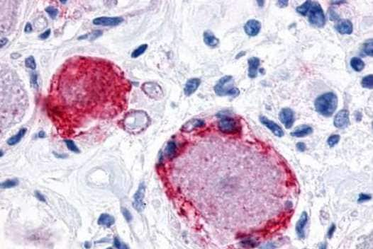 Immunohistochemistry (Formalin/PFA-fixed paraffin-embedded sections) - Anti-MRGX3 antibody - Extracellular domain (ab188769)