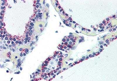 Immunohistochemistry (Formalin/PFA-fixed paraffin-embedded sections) - Anti-Adenosine A2b Receptor/ADORA2B antibody (ab188796)