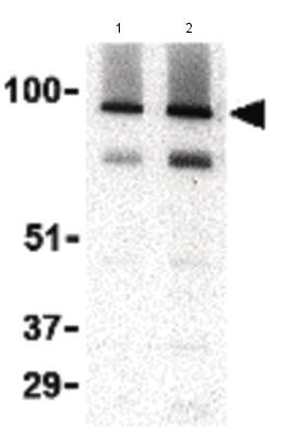 Western blot - Anti-TRPC3 antibody - C-terminal (ab188802)