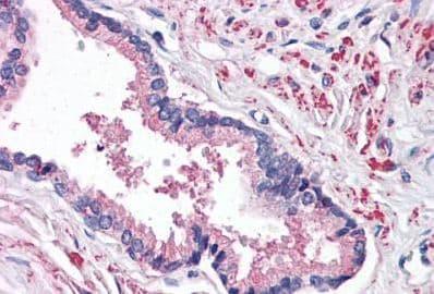 Immunohistochemistry (Formalin/PFA-fixed paraffin-embedded sections) - Anti-STEAP2 antibody - C-terminal (ab188809)