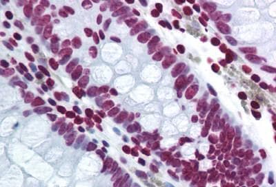 Immunohistochemistry (Formalin/PFA-fixed paraffin-embedded sections) - Anti-Histone H2A.X antibody (ab188819)