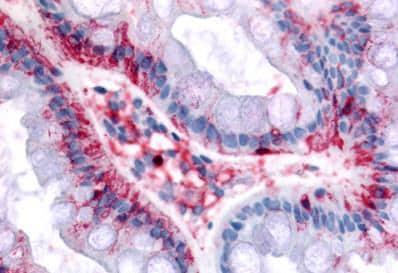 Immunohistochemistry (Formalin/PFA-fixed paraffin-embedded sections) - Anti-BEST4 antibody (ab188823)