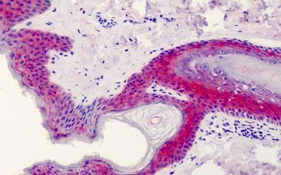 Immunohistochemistry (Formalin/PFA-fixed paraffin-embedded sections) - Anti-Syndecan-1 antibody (ab188861)