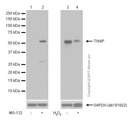 Western blot - Anti-TXNIP antibody [EPR14774] (ab188865)