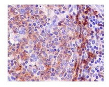 Immunohistochemistry (Formalin/PFA-fixed paraffin-embedded sections) - Anti-BAFF-R antibody [EPR14633] (ab188868)