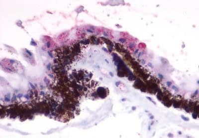 Immunohistochemistry (Formalin/PFA-fixed paraffin-embedded sections) - Anti-RGR antibody - Extracellular domain (ab188904)