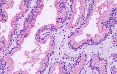 Immunohistochemistry (Formalin/PFA-fixed paraffin-embedded sections) - Anti-GPRC5A antibody - Extracellular domain (ab188905)
