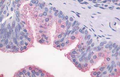 Immunohistochemistry (Formalin/PFA-fixed paraffin-embedded sections) - Anti-GPCR GPR87 antibody - C-terminal (ab188927)