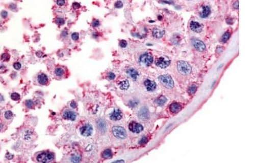 Immunohistochemistry (Formalin/PFA-fixed paraffin-embedded sections) - Anti-MC5 Receptor antibody (ab188932)