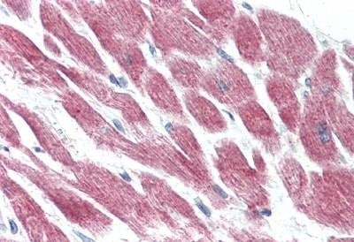 Immunohistochemistry (Formalin/PFA-fixed paraffin-embedded sections) - Anti-GPCR GPR15 antibody - Extracellular domain (ab188938)