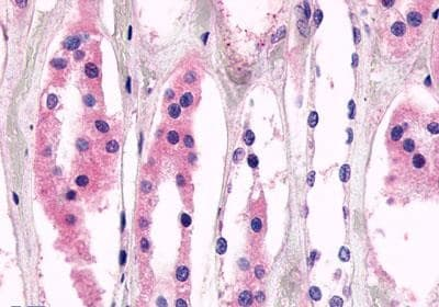 Immunohistochemistry (Formalin/PFA-fixed paraffin-embedded sections) - Anti-MASS1 antibody - N-terminal (ab188940)