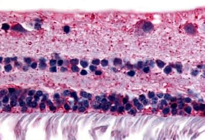 Immunohistochemistry (Formalin/PFA-fixed paraffin-embedded sections) - Anti-RGR antibody (ab188948)