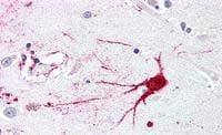 Immunohistochemistry (Formalin/PFA-fixed paraffin-embedded sections) - Anti-GPCR LGR6 antibody - N-terminal (ab188961)