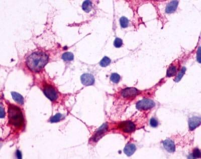 Immunocytochemistry - Anti-CRTH2 antibody - N-terminal (ab188998)