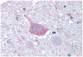 Immunohistochemistry (Formalin/PFA-fixed paraffin-embedded sections) - Anti-GPCR TGR7 antibody - Cytoplasmic domain (ab189006)