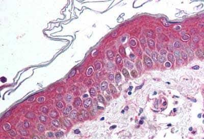 Immunohistochemistry (Formalin/PFA-fixed paraffin-embedded sections) - Anti-Wnt10b antibody (ab189030)