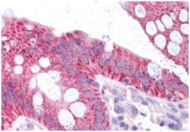 Immunohistochemistry (Formalin/PFA-fixed paraffin-embedded sections) - Anti-CDKN2A/p16INK4a  antibody - N-terminal (ab189034)