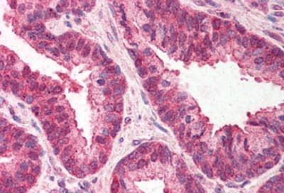 Immunohistochemistry (Formalin/PFA-fixed paraffin-embedded sections) - Anti-TMP21 antibody - C-terminal (ab189088)