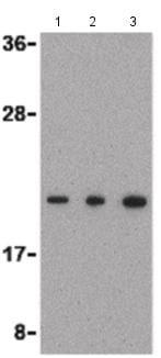 Western blot - Anti-TMP21 antibody - C-terminal (ab189088)