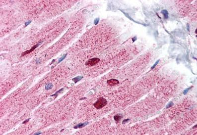 Immunohistochemistry (Formalin/PFA-fixed paraffin-embedded sections) - Anti-PHAP1 antibody - C-terminal (ab189110)