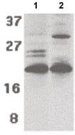 Western blot - Anti-PUMA antibody - C-terminal (ab189123)