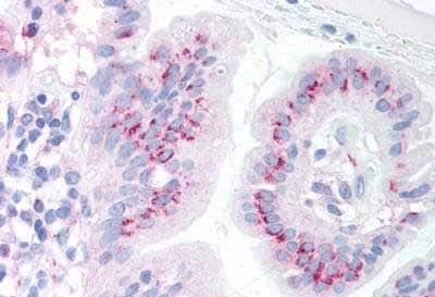 Immunohistochemistry (Formalin/PFA-fixed paraffin-embedded sections) - Anti-PUMA antibody - C-terminal (ab189123)