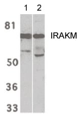 Western blot - Anti-IRAKM antibody - C-terminal (ab189128)