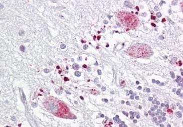 Immunohistochemistry (Formalin/PFA-fixed paraffin-embedded sections) - Anti-TIGAR antibody (ab189164)