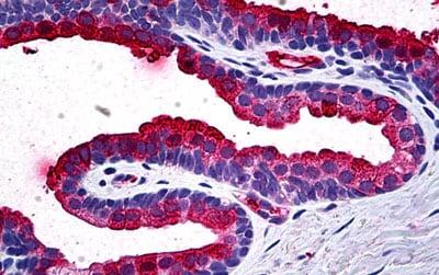 Immunohistochemistry (Formalin/PFA-fixed paraffin-embedded sections) - Anti-TIMP2 antibody [5B11] (ab189166)