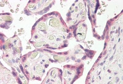 Immunohistochemistry (Formalin/PFA-fixed paraffin-embedded sections) - Anti-RNF139 antibody - C-terminal (ab189173)