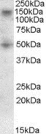 Western blot - Anti-TRC8 antibody - C-terminal (ab189173)