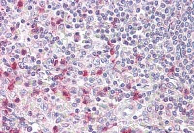 Immunohistochemistry (Formalin/PFA-fixed paraffin-embedded sections) - Anti-NFAT5 antibody (ab189175)