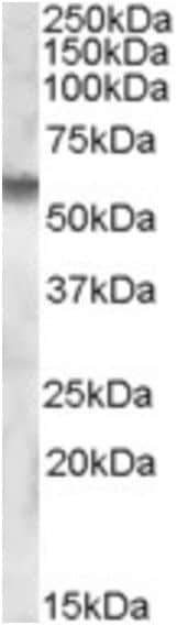 Western blot - Anti-Iduronate 2 sulfatase/SIDS antibody (ab189197)
