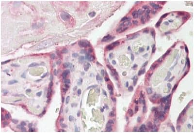 Immunohistochemistry (Formalin/PFA-fixed paraffin-embedded sections) - Anti-FAM62A antibody (ab189199)