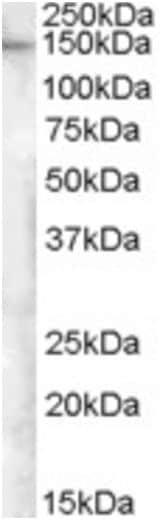 Western blot - Anti-E-Syt1 antibody (ab189199)