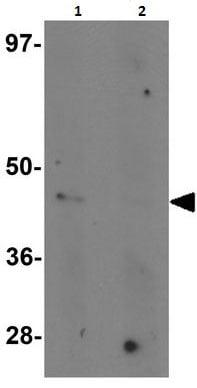 Western blot - Anti-Nkx2.4 antibody (ab189202)