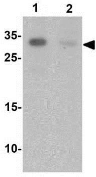 Western blot - Anti-TCTEX1D1 antibody - N-terminal (ab189209)