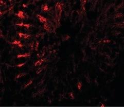 Immunocytochemistry/ Immunofluorescence - Anti-TCTE3 antibody - N-terminal (ab189215)