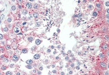 Immunohistochemistry (Formalin/PFA-fixed paraffin-embedded sections) - Anti-TCTE3 antibody - N-terminal (ab189215)