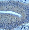 Immunohistochemistry (Formalin/PFA-fixed paraffin-embedded sections) - Anti-Bcl10 antibody [ep605y] - BSA and Azide free (ab189218)